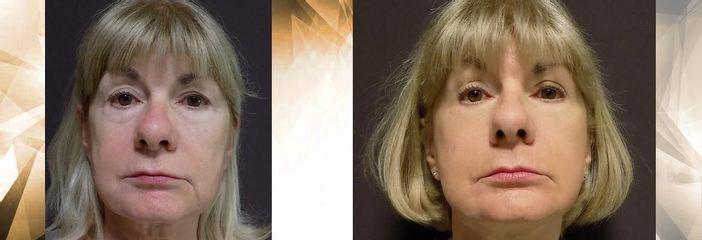 facelift oční víčka