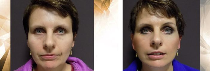 facelift necklift