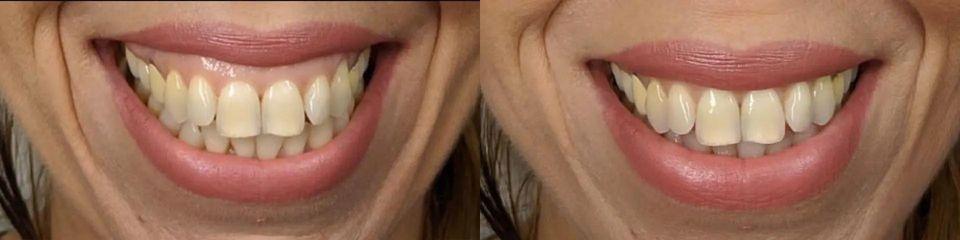 Botulotoxin - snížení dásní
