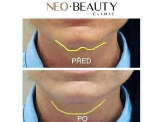 Úprava tvaru brady výplní na bázi kyseliny hyaluronové