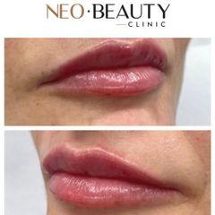 Zvětšení rtů - Neo Beauty Clinic