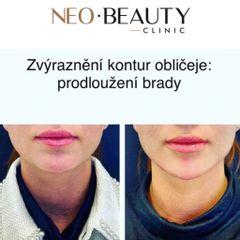 Zvýraznění kontur obličeje - prodloužení brady - Neo Beauty Clinic