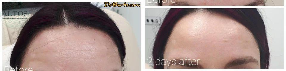 BEFORE 16. Botox