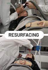 resurfacing