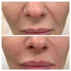 Odstranění vrásek - Laserová dermatologická klinika ALTOS