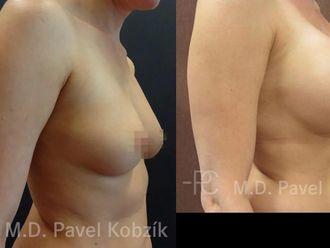 Zvětšení prsou (Augmentace) - 670594