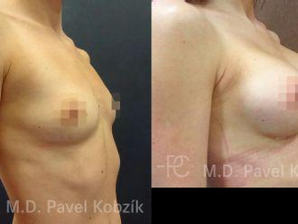Zvětšení prsou (Augmentace) - 670597