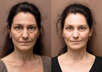 ANTIAGING PRED PO 004