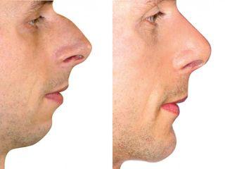 Zvetseni brady korekce nosu PRED kopie