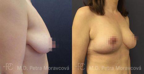 modelace prsu PM Pred II