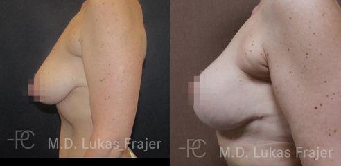 Modelace prsů