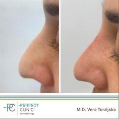 Nechirurgická korekce nosu - Perfect Clinic - centrum estetické medicíny