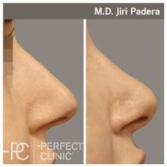 Rhinoplastika - Dr. Paděra - Perfect Clinic