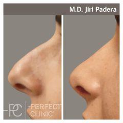 Rhinoplastika - Perfect Clinic - centrum estetické medicíny