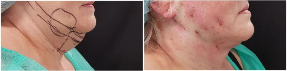 Laserová liposukce Slimlipo