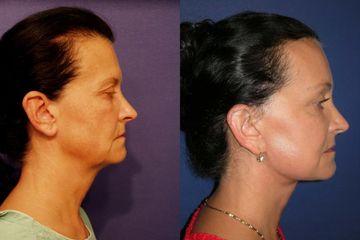 Rozšířený SMAS lift včetně obličeje čela a krku před operací