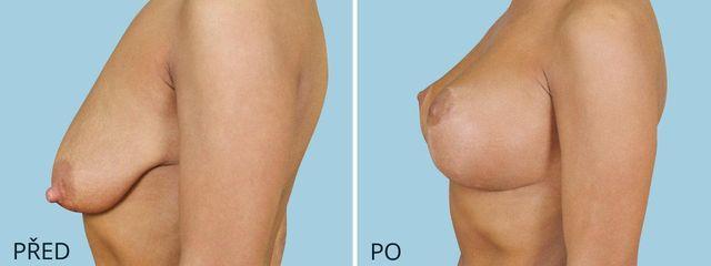 plastika povislych prsou modelace zvetseni 2 2