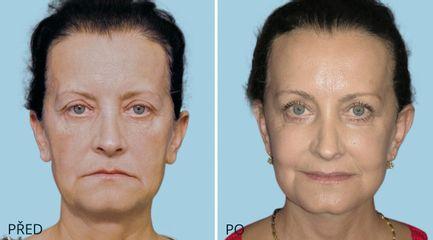 rozsireny Face SMAS lifting 3557