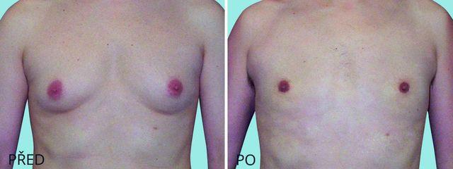 plastika zmenseni muzske prsni zlazy gynekomastie 2555 1