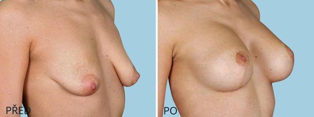 plastika povislych prsou modelace zvetseni 3 2
