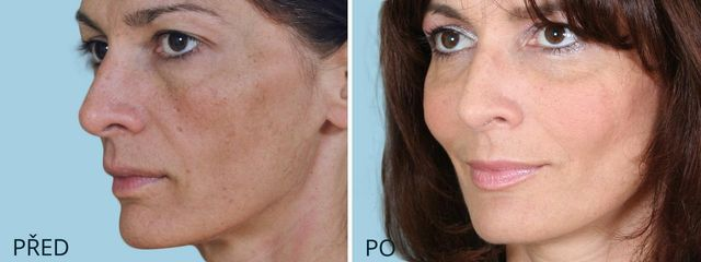 Endotine – implantáty (alternativa browliftu, foreheadliftu, faceliftu, neckliftu)
