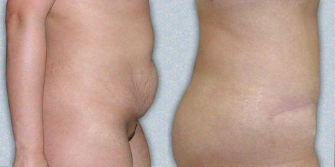 abdominoplastika 04 3