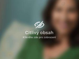 Korekce jizev - 734988
