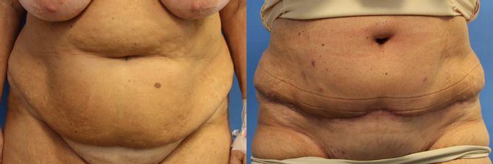 Abdominoplastika (operace břicha)