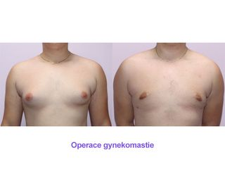 Operace gynekomastie