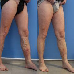 Laserová operace křečových žil - GIA Clinic s.r.o.