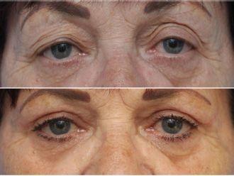 Operace očních víček - 795832