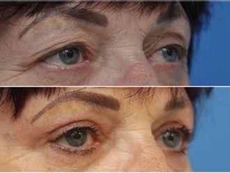 Operace očních víček - 795833
