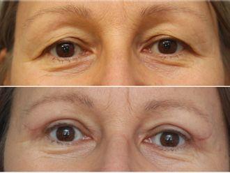 Operace očních víček - 797396