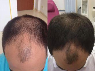 Vypadávání vlasů - 736141