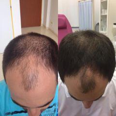 Léčba vypadávání vlasů (alopecie). Fotky před a po vlasové mezoterapii.