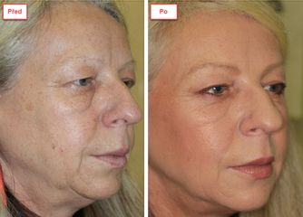 My Best Care s. r. o. - klinika estetické dermatologie a plastické chirurgie