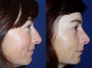 nos pred operaci z