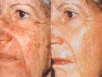 Laserová dermatologie - 717781