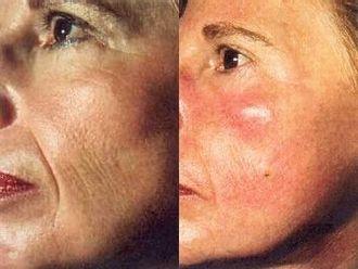 Laserová dermatologie - 717782