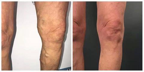 BEFORE pacient laser velke varixy po 4t