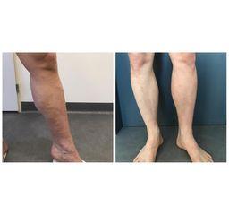 Laserová operace křečových žil - MUDr. Radek Vyšohlíd