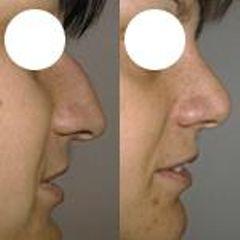 krivy nos01