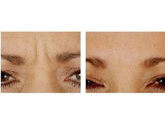 Odstranění vrásek pomocí botulotoxinu - 701639