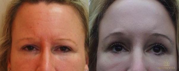 Endoskopický lifting čela a obočí Endotine