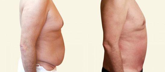 Operace gynekomastie s liposukcí prsou