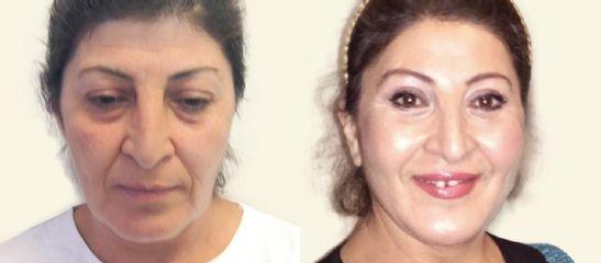 Endoskopický lifting čela a obočí Endotine + facelift