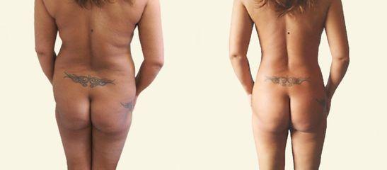 BodyTite liposukce boků