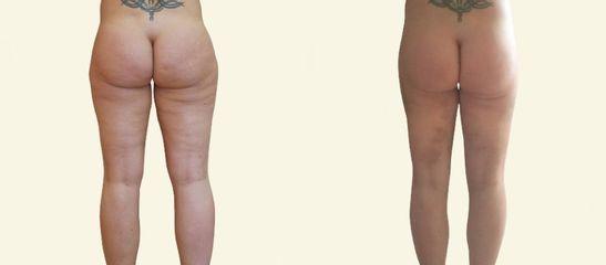 Vibrační MicroAire liposukce boků