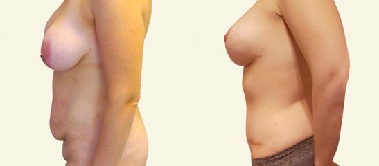 Abdominoplastika s liposukcí břicha a boků