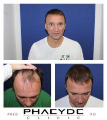 Transplantacia Vlasov Implantacia Vlasov pred po vysledky phaeyde p031